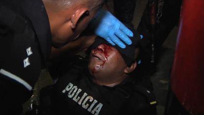 Doden en gewonden bij hevige protesten in Nicaragua