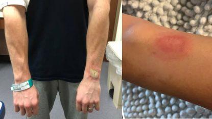 Flinke brandwonden door Fitbit: is het dragen van een sporthorloge gevaarlijk?