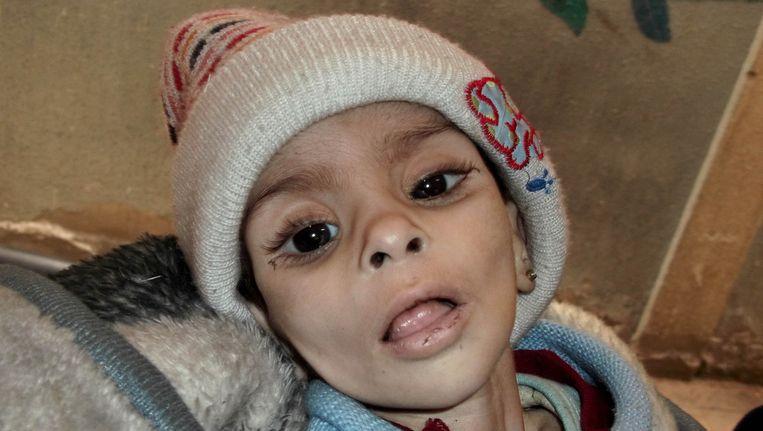 Een zwaar ondervoed meisje in het vluchtelingenkamp Yarmouk, dat kort daarna zou overlijden. Beeld ap