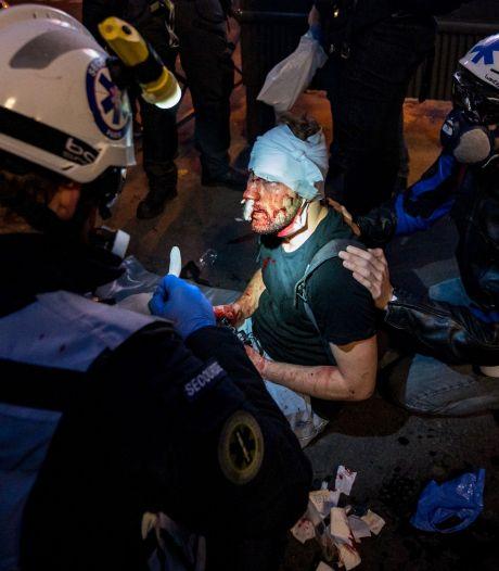 Photographe de l'AFP blessé lors d'une manifestation en France: une enquête interne de la police ouverte