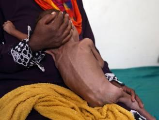 Oorlog in Jemen eiste al 70.000 slachtoffers, waaronder 9.200 kinderen
