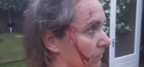 Roofvogel grijpt vrouw: '5 centimeter naar voren en ik had geen oor meer'