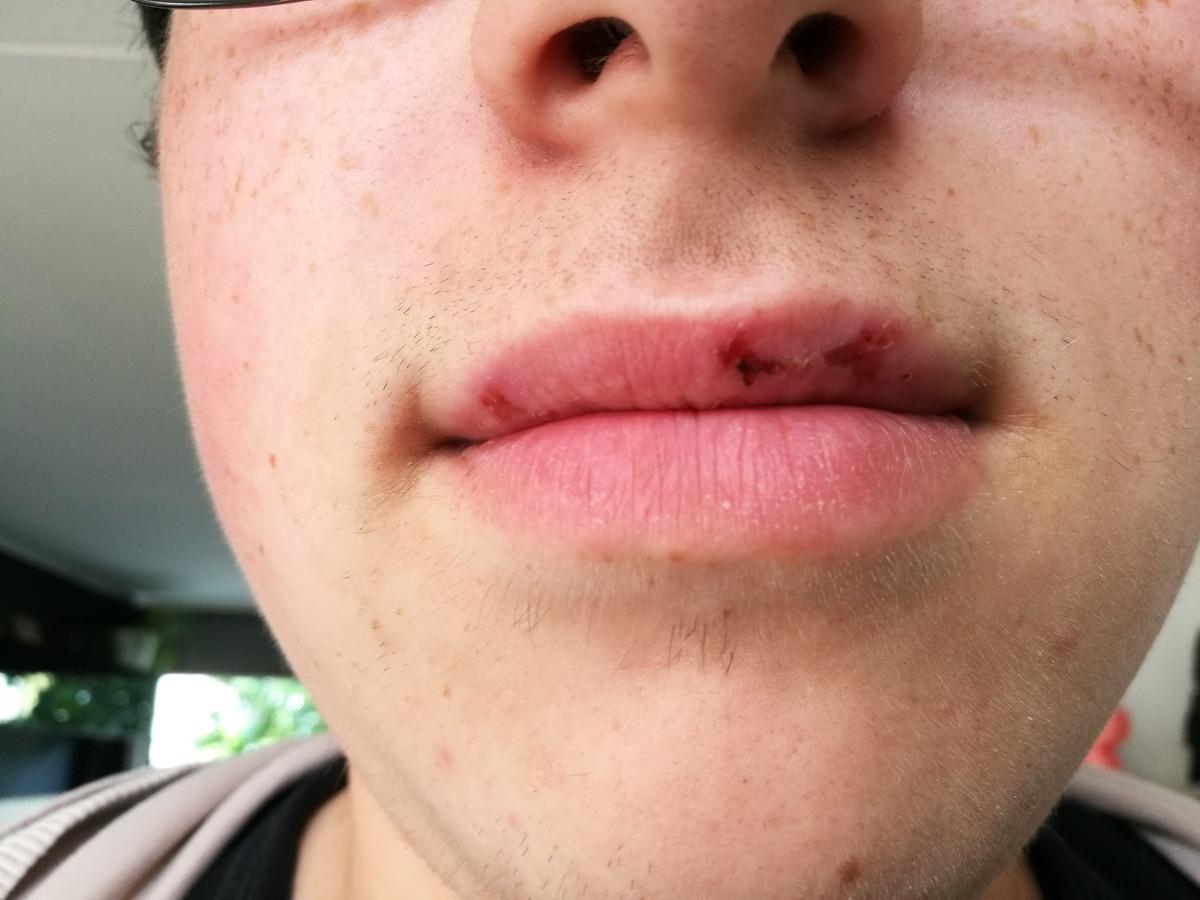 Dieye heeft mond en klauwzeer na een Ardennenkamp met het Liemers College.