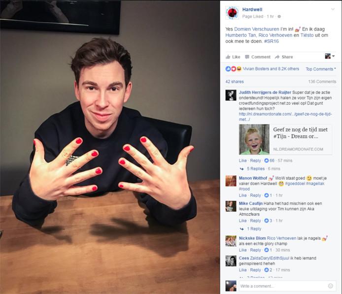 Ook Hardwell doet mee aan de nagellak-challenge van Tijn