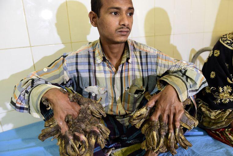 Abul Bajandar (26), alias 'boomman, lijdt aan een uiterst zeldzame huidziekte.