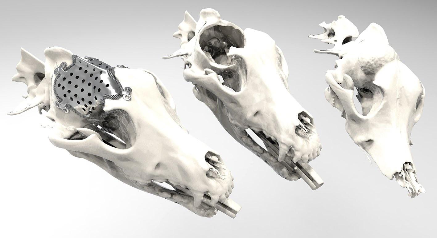 De prothese, de schedel na het verwijderen en de schedel mét tumor.