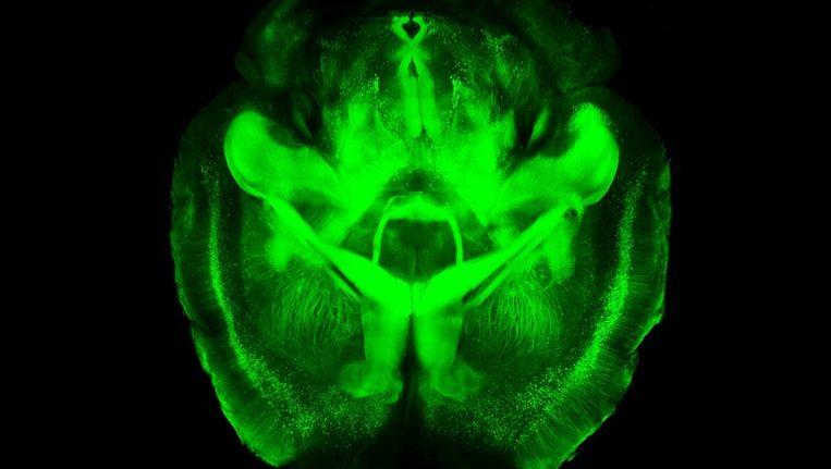 Wetenschappers Maken Hersenen Doorzichtig Trouw