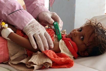 Jemen kent ergste cholera-epidemie ooit: 360.000 gevallen in amper drie maanden
