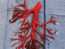 Hartpatiënt hoest 'perfect' bloedstolsel op