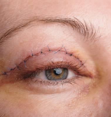 Nooit te oud voor een ooglidcorrectie