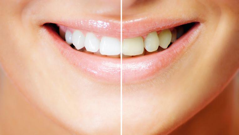 Ongekend Zelf natuurlijk je tanden bleken, een goed idee?   Fit & Gezond WZ-36