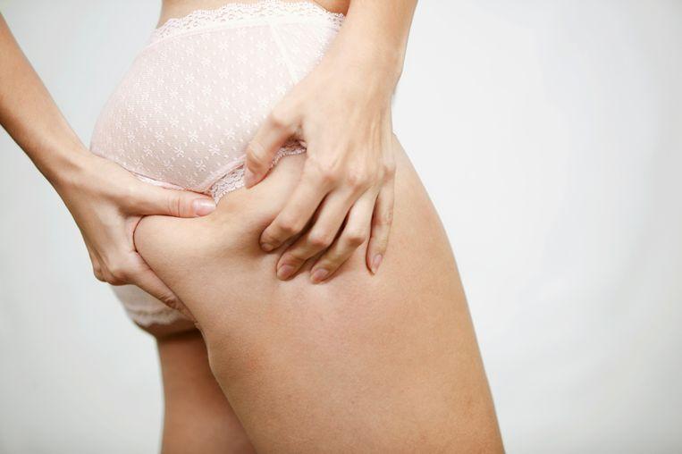 Liefst 77 procent van de meisjes en vrouwen tussen 18 en 35 vindt zichzelf te dik.