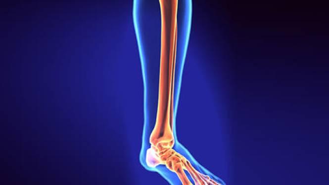 Medische primeur geslaagd: Maxime (5) kan zonder pijn wandelen na implanteren 'biotechplasticine'