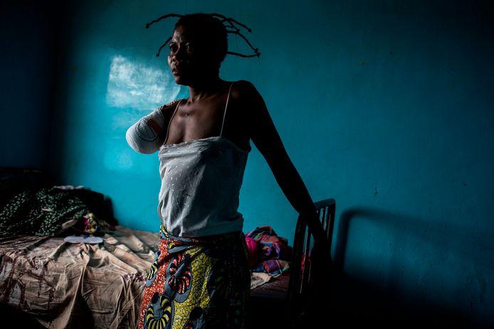 Een Congolese vrouw zit op de rand van haar bed. Haar arm was niet meer te redden en moest geamputeerd worden na een forse schotwond die ze opliep bij gevechten tussen lokale milities. Foto John Wessels