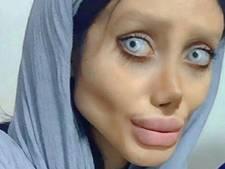 Sahar viel 40 kilo af en onderging 50 operaties om op idool te lijken