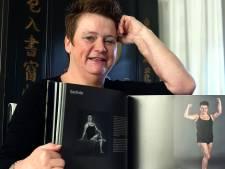 Deze Helwijkse staat in een boek over mensen met littekens