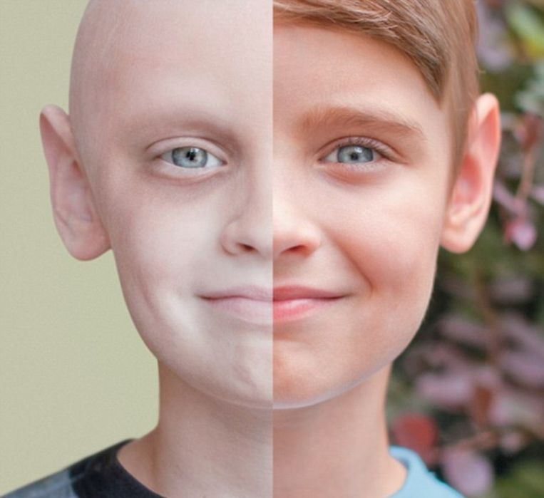 Noah (4) als AML-patiënt // Noah (7) als gezonde jongen.