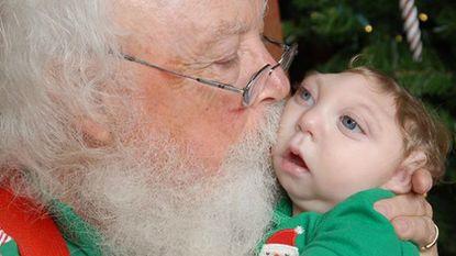 Mirakelbaby die helft van schedel mist, heeft vertederende eerste ontmoeting met kerstman