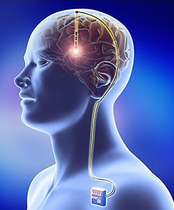 deep brain stimulation of DBS