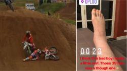 Motorcrosser Herlings breekt enkel nadat collega erover rijdt, maar toont nadien waarom hij de wereldkampioen is
