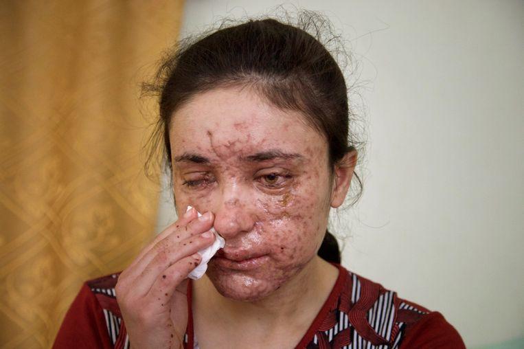 De 18-jarige Lamiya Aji Bashar raakte tijdens haar vluchtpoging ernstig gewoond in haar gezicht door een landmijn, en werd aan een oog blind.
