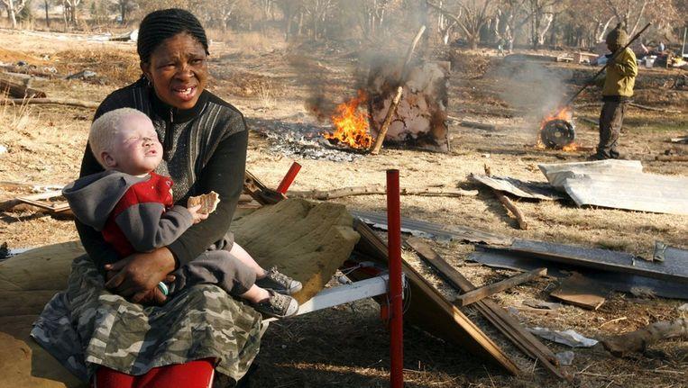 Een Afrikaanse vrouw met haar albino dochter, in Johannesburg Beeld anp