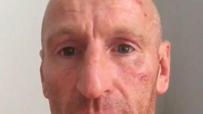Ex-rugbykapitein Wales slachtoffer homofoob geweld