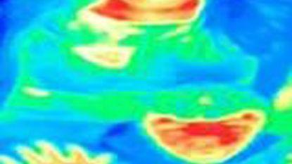 Vrouw ontdekt via warmtecamera in museum dat ze borstkanker heeft