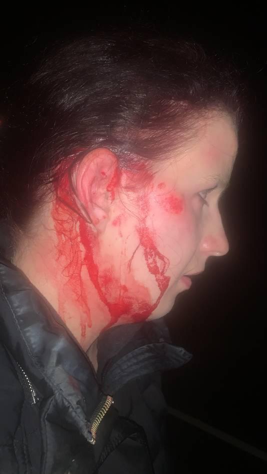 Bianca Pierik zoekt de automobilist die haar aanreed en er vandoor ging