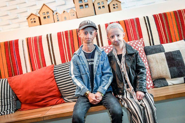 Michiel (20) en Amber (12) zijn de enige nog levende broer en zus ter wereld met de ouderdomsziekte progeria.