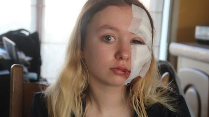 """Amber (18) van fiets gemaaid en voor dood achtergelaten: """"Hij reed zonder vertragen gewoon verder"""""""