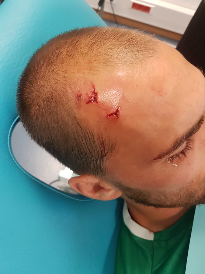 Bas Dost krijgt hechtingen in zijn hoofd nadat hij en zijn medespelers zijn aangevallen door hooligans tijdens een training van Sporting Lissabon.