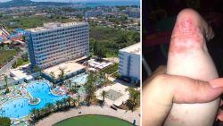 """""""Heel onze vakantie om zeep"""": besmettelijke ziekte treft tientallen hotelgasten in Mallorca"""