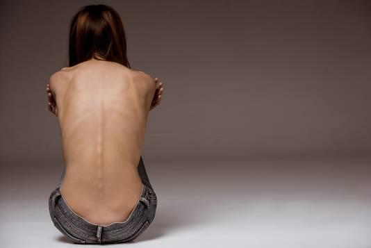 Een kwart van de jonge vrouwen, want daar gaat het meestal om, geneest niet van anorexia.