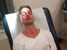 Rotterdammer sprong tussenbeide bij vechtpartij 7th Sunday: 'Met z'n allen op één, triest hoor'