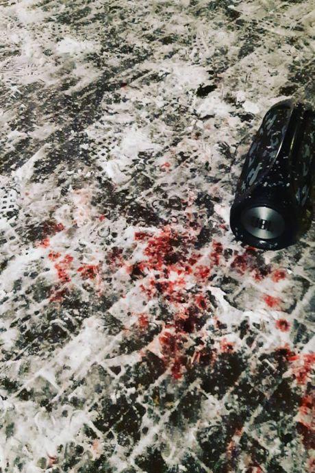 Jongen (17) tot bloedens toe in elkaar geslagen in Zutphen, twee verdachten uit Warnsveld opgepakt