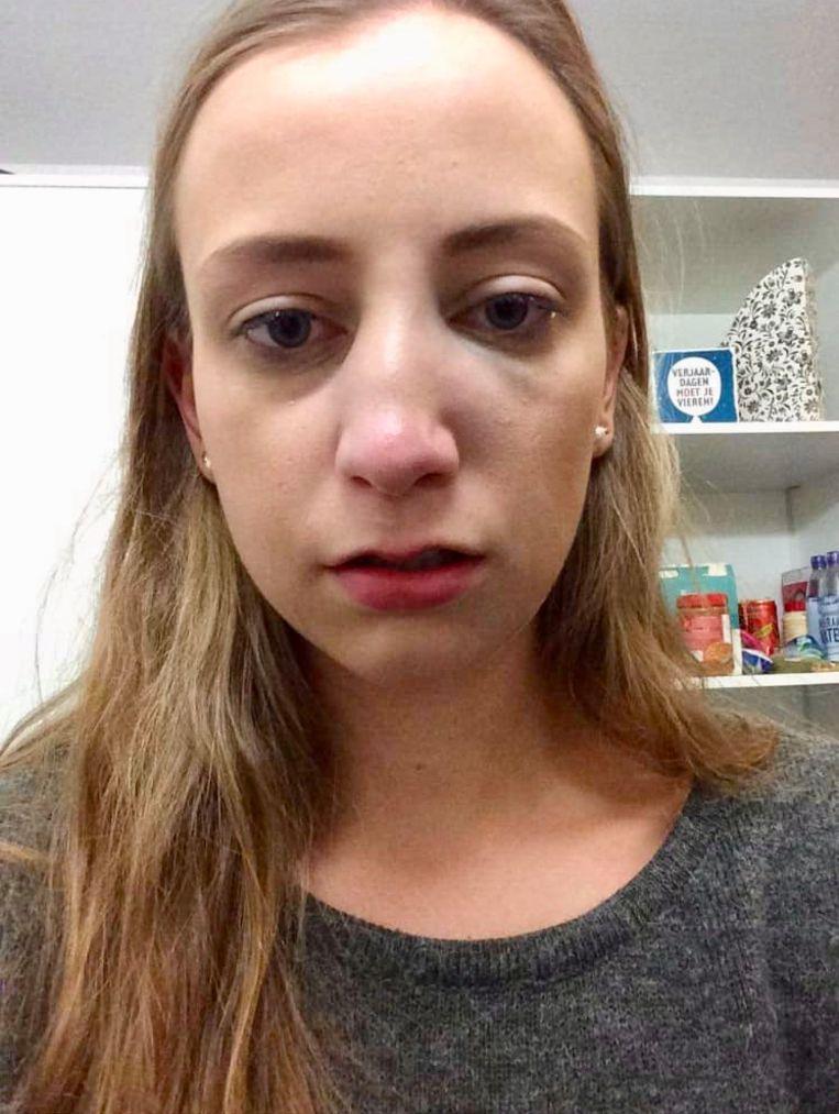 Anke was slachtoffer van geweld op de Oude Markt. Een ander meisje sloeg haar een gebroken neus.