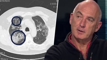 """Spoedarts uit Aalst: """"Mensen tussen 30 en 50 jaar zijn zwaar ziek. Beelden van longen zijn angstaanjagend"""""""