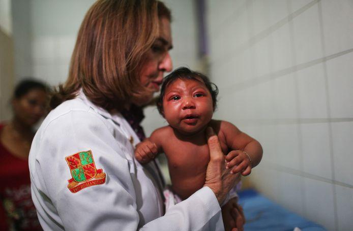De 2 maanden oude baby Ludmilla Dias is geboren met microcefalie, een te kleine schedel. Dat leidt tot aanhoudende ontwikkelingsproblemen.