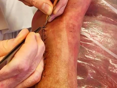 Marga Bult toont litteken dat ze overhoudt aan open beenbreuk