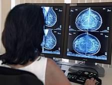 Controle op borstkanker bij Achterhoekse vrouwen begint na een half jaar weer
