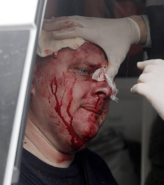 Een gewonde Oekraïnese politieman wordt verzorgd in een ambulance na een confrontatie met opstandelingen.