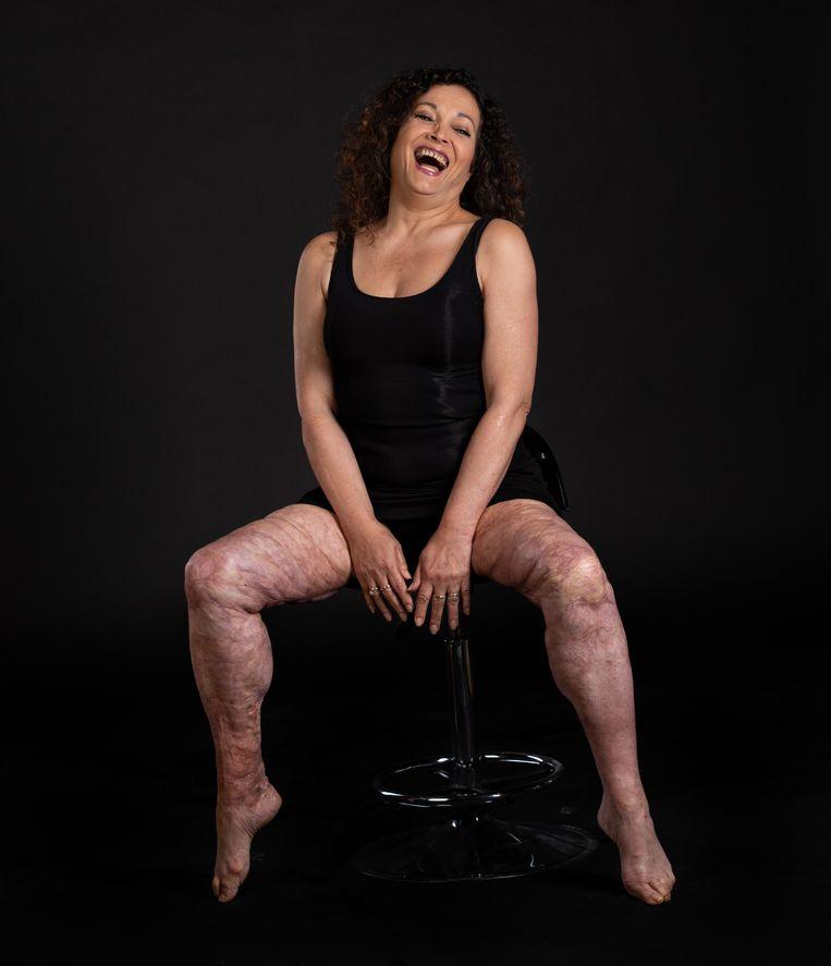 Sandra Marks met haar littekens van brandwonden.