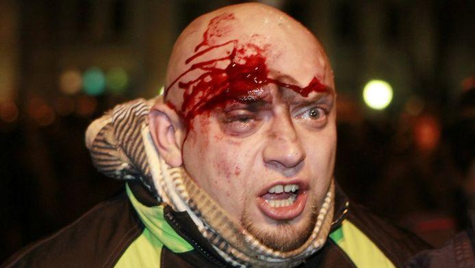 Un Ukrainien blessé au cours des manifestations