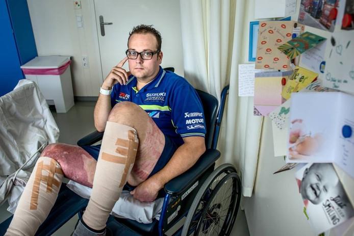 Sebastiaan Halfwerk in het brandwondencentrum in Groningen, waar hij al vijf weken ligt. Foto Corné Sparidaens.
