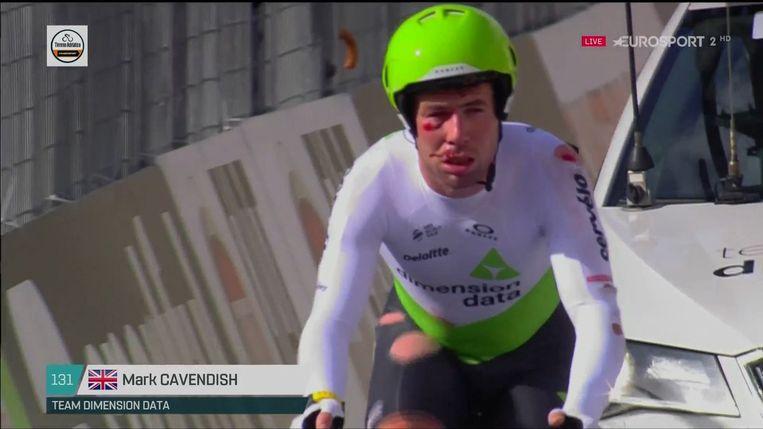 Cavendish was zwaar gehavend in zijn gezicht.