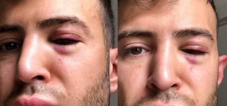 Stylist Chiel Harten in elkaar geslagen en beroofd