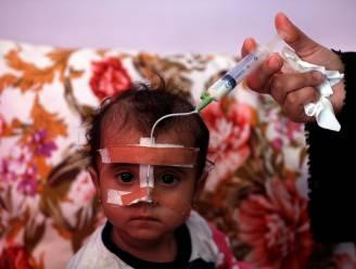 Acute ondervoeding bij kinderen op hoogste niveau ooit in Jemen