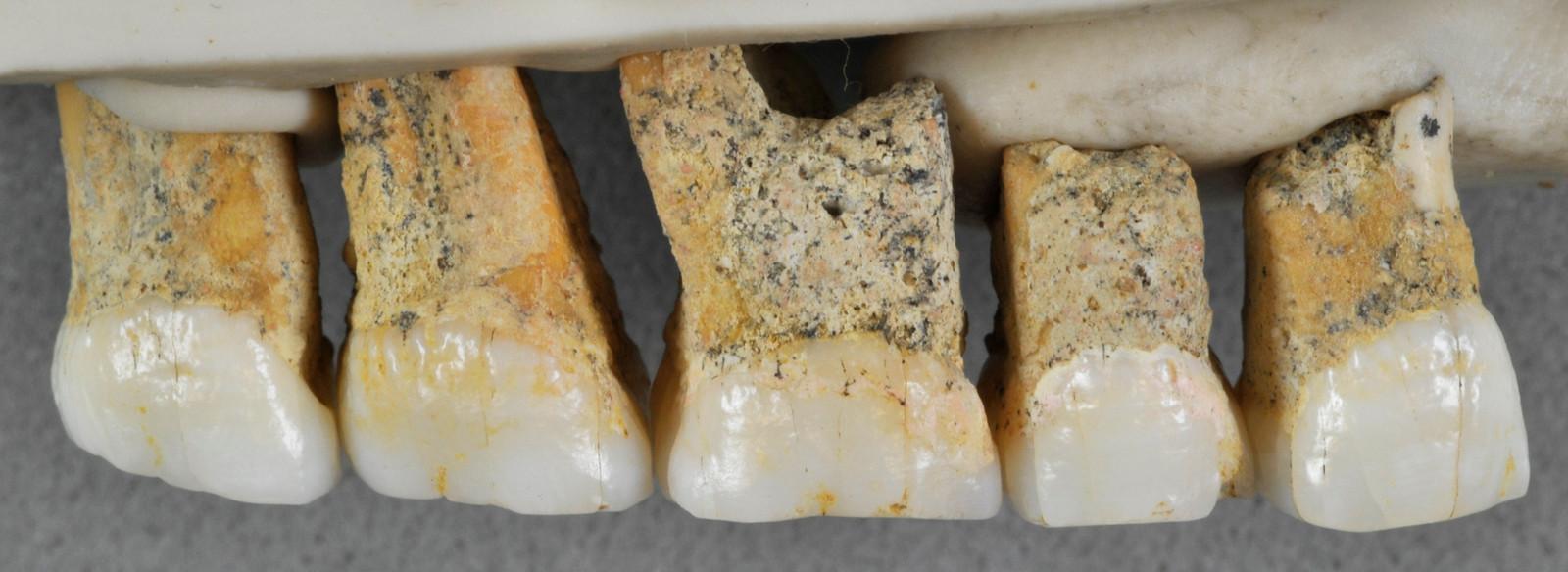 Het formaat van de gevonden tanden wijst erop dat Homo luzonensis klein van stuk was.