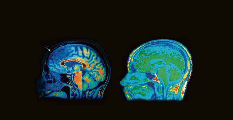 Bij de 'superbehandeling' wordt een hersenscan gemaakt die gebieden toont die 'te actief' of 'te weinig actief' zouden zijn. Een intensief behandeltraject volgt, met een veelheid aan multitask-, concentratie- en ontspanningsoefeningen.  Beeld -